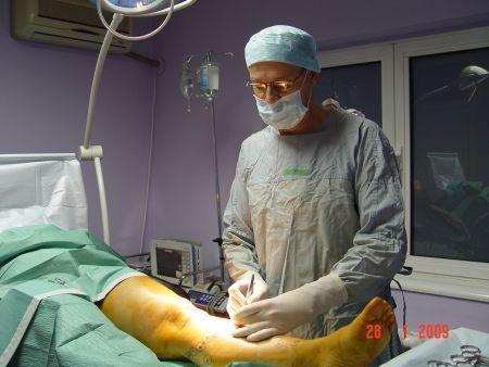 varicoză după videoclipul chirurgical ce trebuie să faceți dacă în timpul sarcinii varicoză