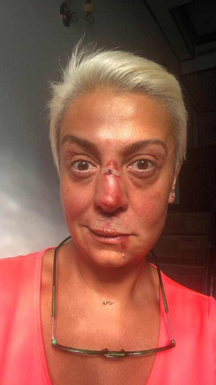 Monica Anghel, desfigurată! Clipe de coșmar pentru cântăreață
