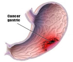 cancerul gastric etiologie